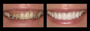 Before and After teeth cleaning Missouri City