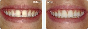 Before & After tooth treatment Missouri City